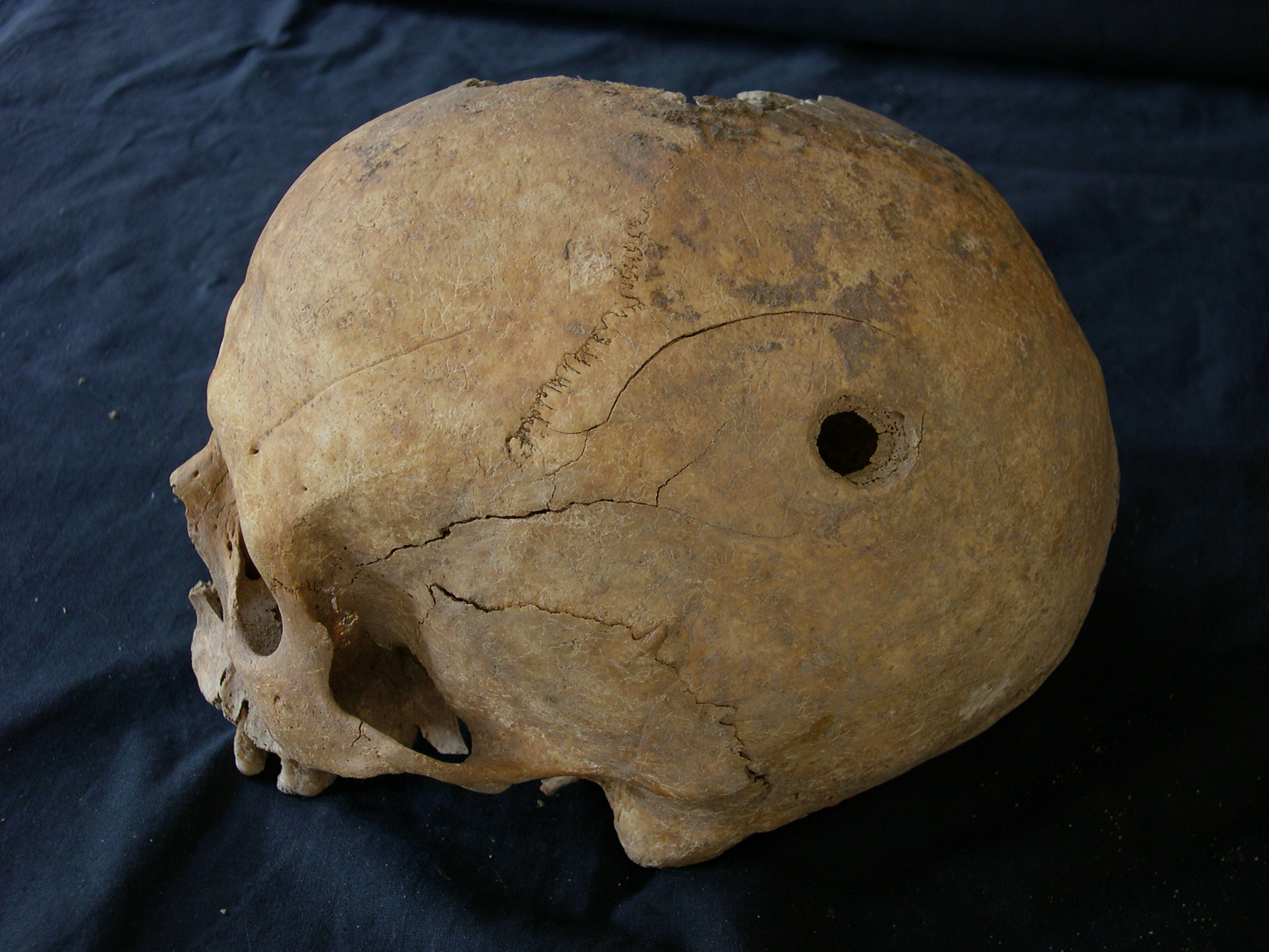 Two trepanned skulls from the Middles Ages are found in Soria, Spain
