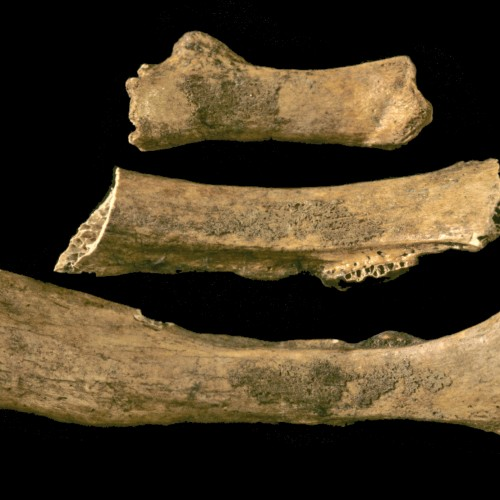 Technology brings new life to the study of diseases in old bones