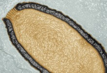 30,000 year-old giant virus found in Siberia