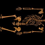 New 3D representation of Richard III's spine shows 'spiral nature' of his scoliosis