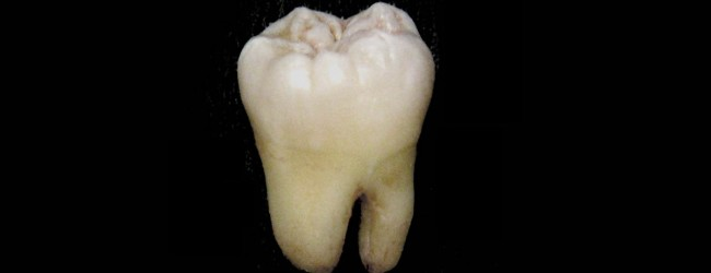 Getting to the root of enamel evolution