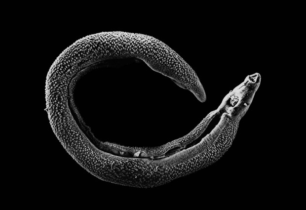 The Lancet Infectious Diseases: Oldest ever schistosomiasis egg found may be first proof of early human technology exacerbating disease burden