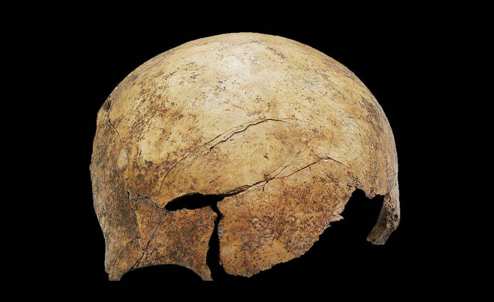 Evidence of a massive injuries shortly before or after death: skull injury in an 8 year old child about. (Photo: PNAS, University of Basel)