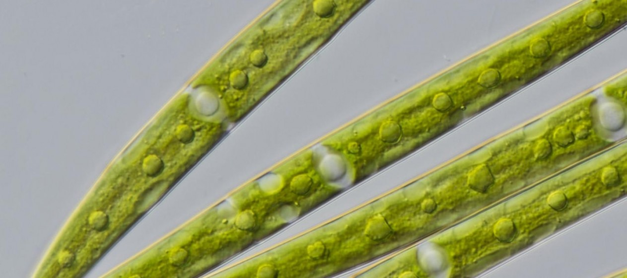 Closterium strigosum is one of the green algae the scientists analyzed. CREDIT Michael Melkonian