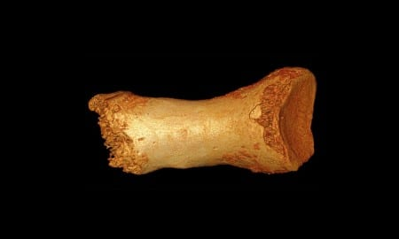 Dorsal view of the Denisova Neandertal toe bone. Credit  (Image by Bence Viola)