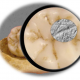 This is an image of a fossilized human molar used in study dietary habits of Neandertals and Upper Paleolithic Homo sapiens. CREDIT Image credit: Sireen El Zaatari PLOS ONE e0153277