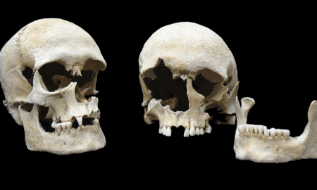 Skulls of both plague victims buried together in one grave at the Altenerding cemetery. Right: Individual 1175 (female, 25-30 years old) left: individual 1176, (male, 20 to 25 years old). The Yersinia pestis genome was extracted from individual 1175. CREDIT State Collection of Anthropology and Palaeoanatomy Munich
