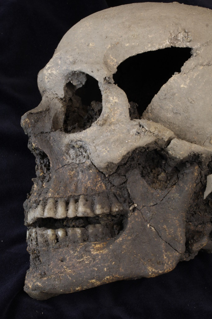 The skull of one of the individuals excavated at College Green (Copyright: Rubicon Heritage Services Ltd