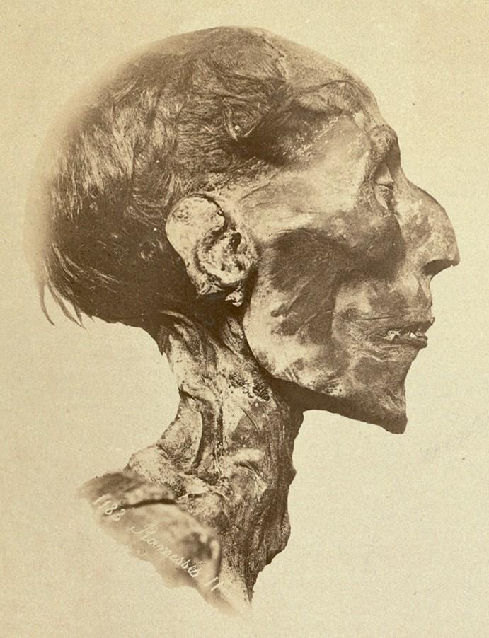 Ramses II Mummy: WikiPedia