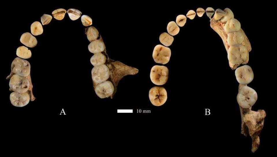 Dentici%C3%B3n-Dunsha-1-960x545.jpg